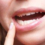 Was hilft gegen Herpes im Mund?