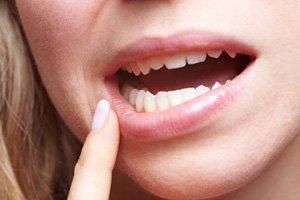Frau mit Schmerzen im Mund