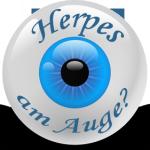 Herpes im Auge (Augenherpes) – Symptome und Behandlung